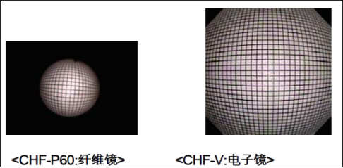 CHF TYPE V.png